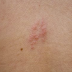 Photos Of Skin Rashes